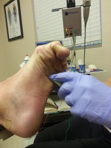 Notice that the bottom of my foot has a needle in it